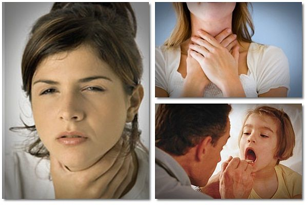 Natural Remedy for Sore Throat