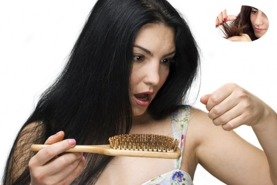 Best home remedy for hair loss in women