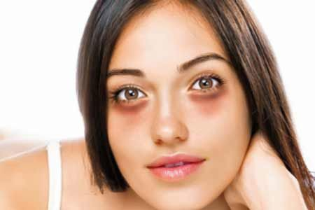 Good home remedies to remove dark spots