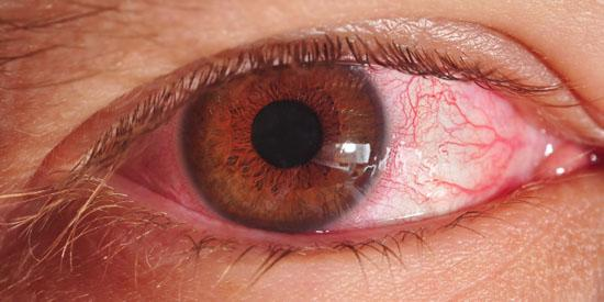 home remedies for pinkeye