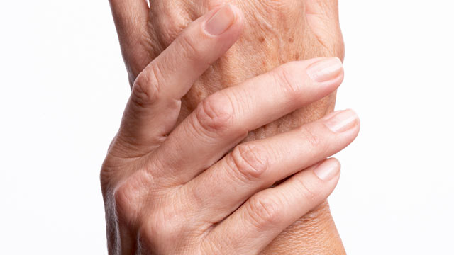 Herbal remedies to cure arthritis