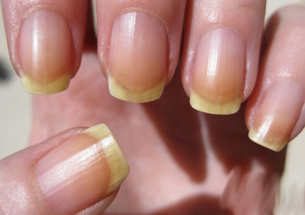 Home Remedies to treat Yellow Nails