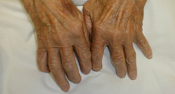Herbal Remedies To cure Rheumatoid Arthritis