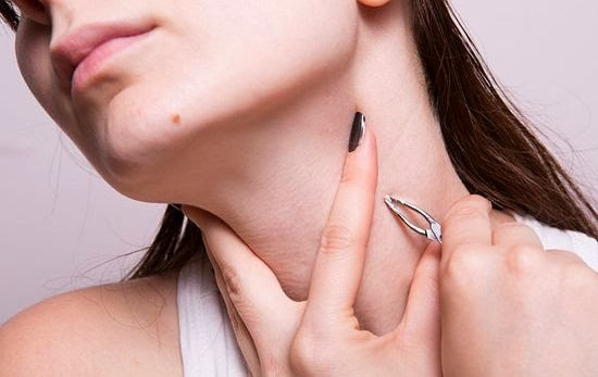 Home Remedies to Get Rid of Skin Tags