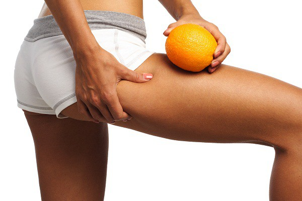 cellulite-treatment How to Get Rid of Cellulite