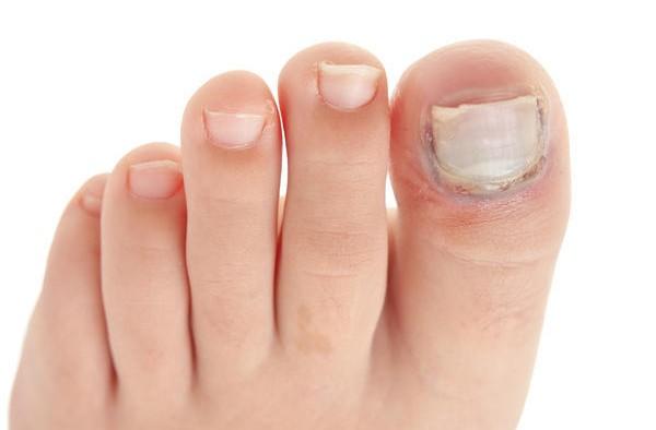 Home Remedies to Treat Ingrown Toenails