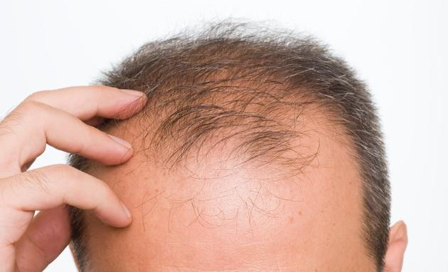 Home Remedies to Treat Baldness