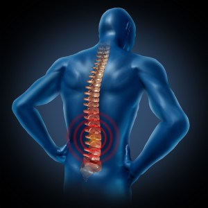 having-poor-body-posture1-300x300 Having poor body posture? Try these 6 effective exercises