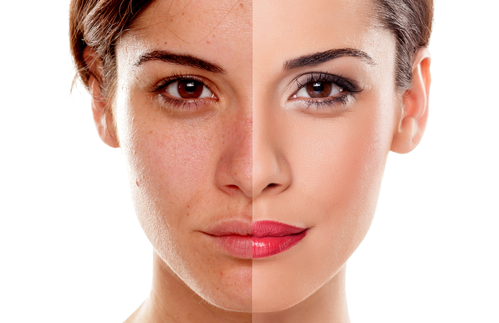 dark-spot-21 How to Remove Dark Spots on Your Face