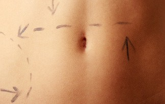 traditional-liposuction