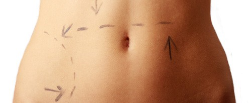 traditional-liposuction Understanding the Differences Between SmartLipo and Liposuction