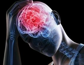 Disconbobulation How Brain Injuries can Alter the use of your Body