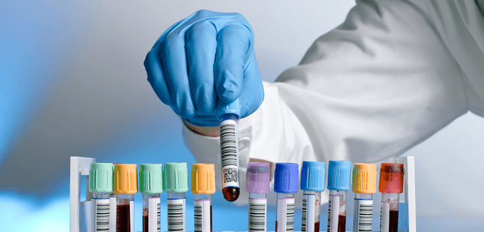 Send-It-to-the-Lab-How-Medical-Professionals-Process-Lab-Tests Send It to the Lab: How Medical Professionals Process Lab Tests