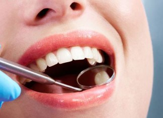 The 3 Best Natural Methods for Preventing Cavities