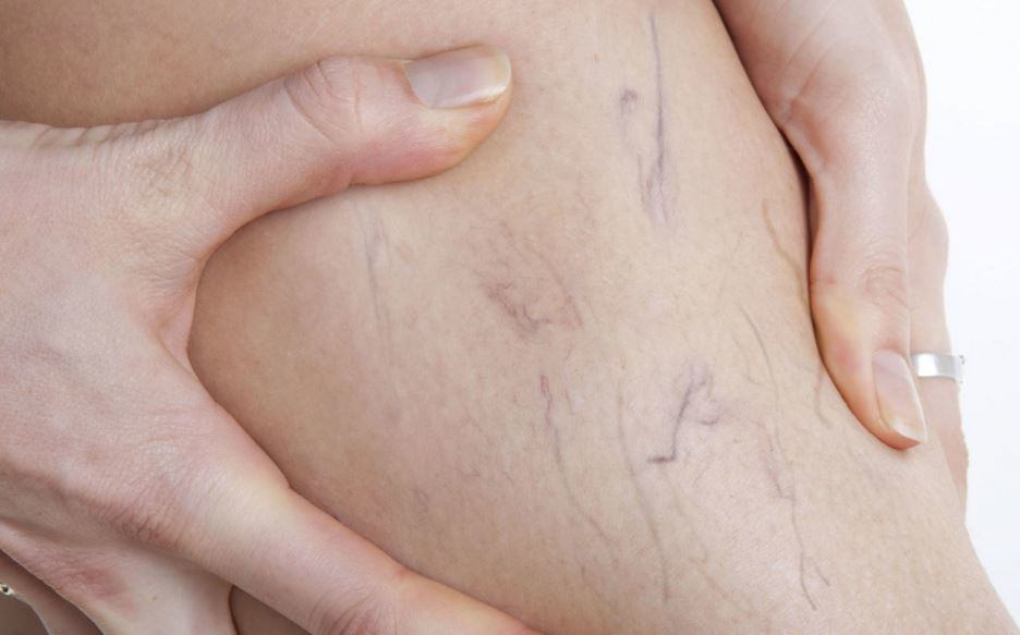 Varicose-Veins-6-Steps-to-Recover-from-your-Treatment Varicose Veins: 6 Steps to Recover from your Treatment
