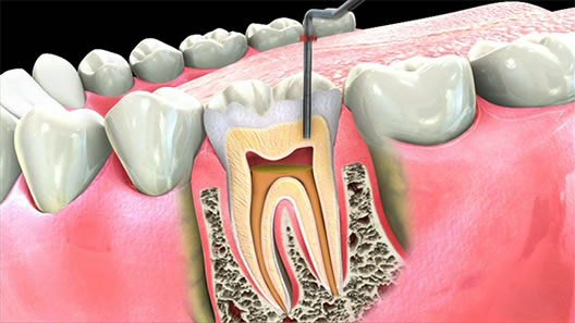 root When Do You Really Need a Root Canal Treatment?