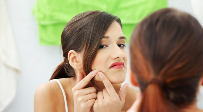 Get Rid Of Acne Overnight – Some Hacks To Follow