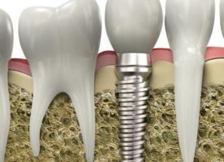 Senior Citizens 3 Reasons to Consider Getting Dental Implants