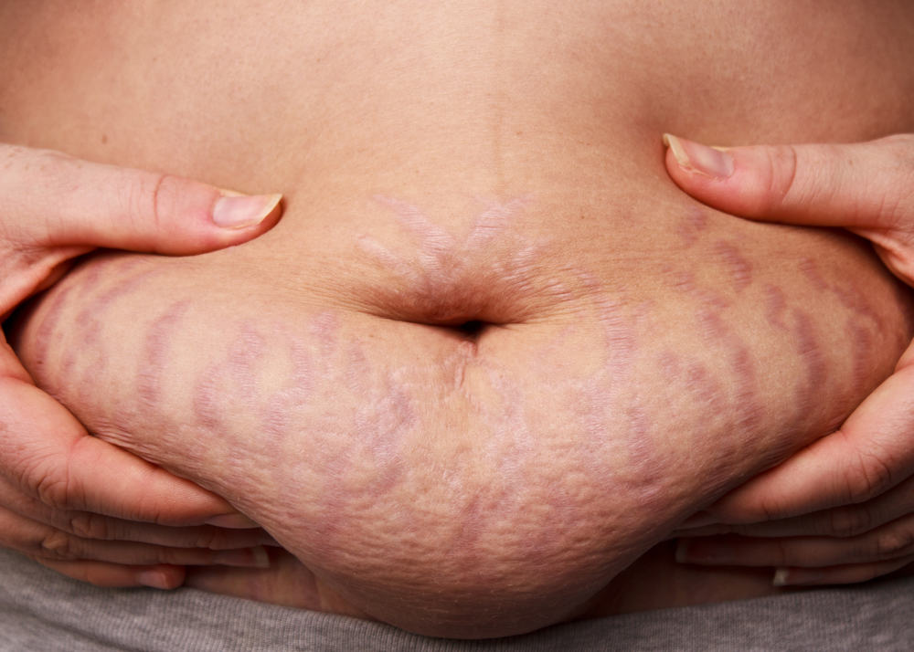 shutterstock_85330531 Reasons Behind Stretch Marks and its Solutions