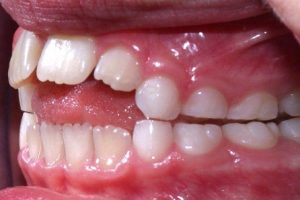 Dental-Problems-300x200 2 Of the Most Common Dental Problems Which Afflict Grownups and How to Prevent Them
