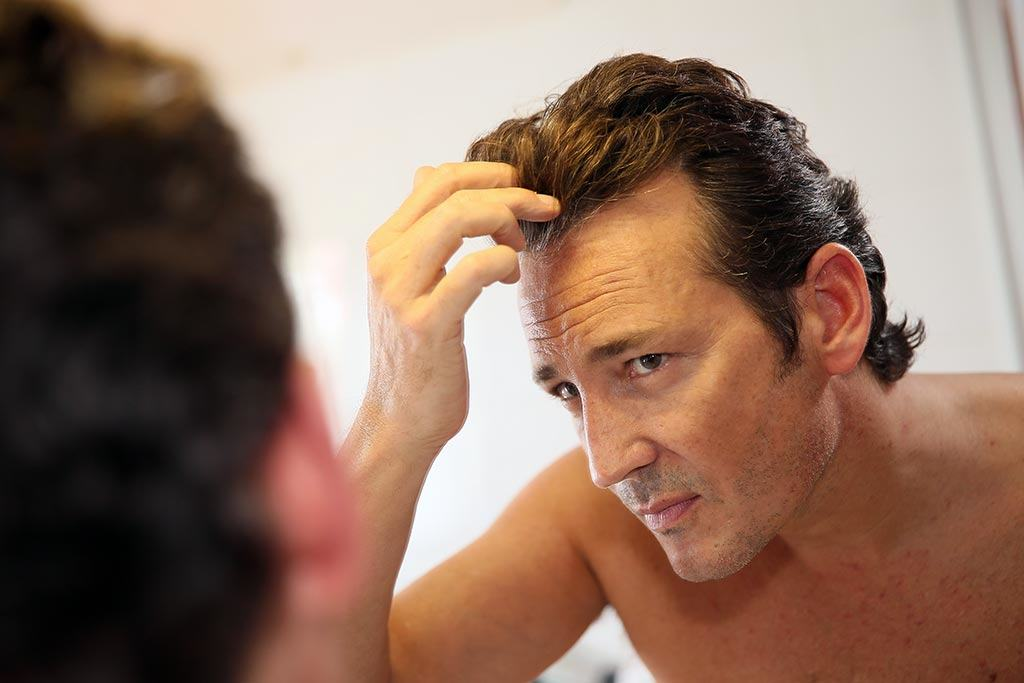 Effective-Ways-To-Combat-Hair-Loss-image The 5 Most Effective Ways To Combat Hair Loss Today