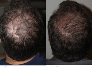 The best solution for your Hair Loss or Baldness- Hair Restoration With PRP Therapy