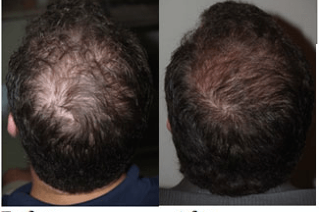 The-best-solution-for-your-Hair-Loss-or-Baldness-Hair-Restoration-With-PRP-Therapy The best solution for your Hair Loss or Baldness- Hair Restoration With PRP Therapy