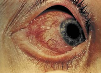 symptoms-of-the-iridocyclitis