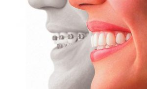 6205038716_59c4390c05_n-300x183 Protect Your Teeth: Top Oral Care Habits Your Dental Hygienist Wants You to Know