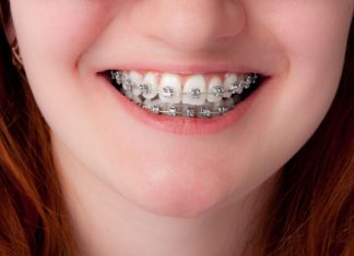 Straight Smiles Why Your Kids Need Braces