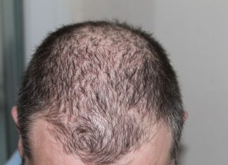 Beat Baldness - 5 Natural Ways to Prevent Hair Loss