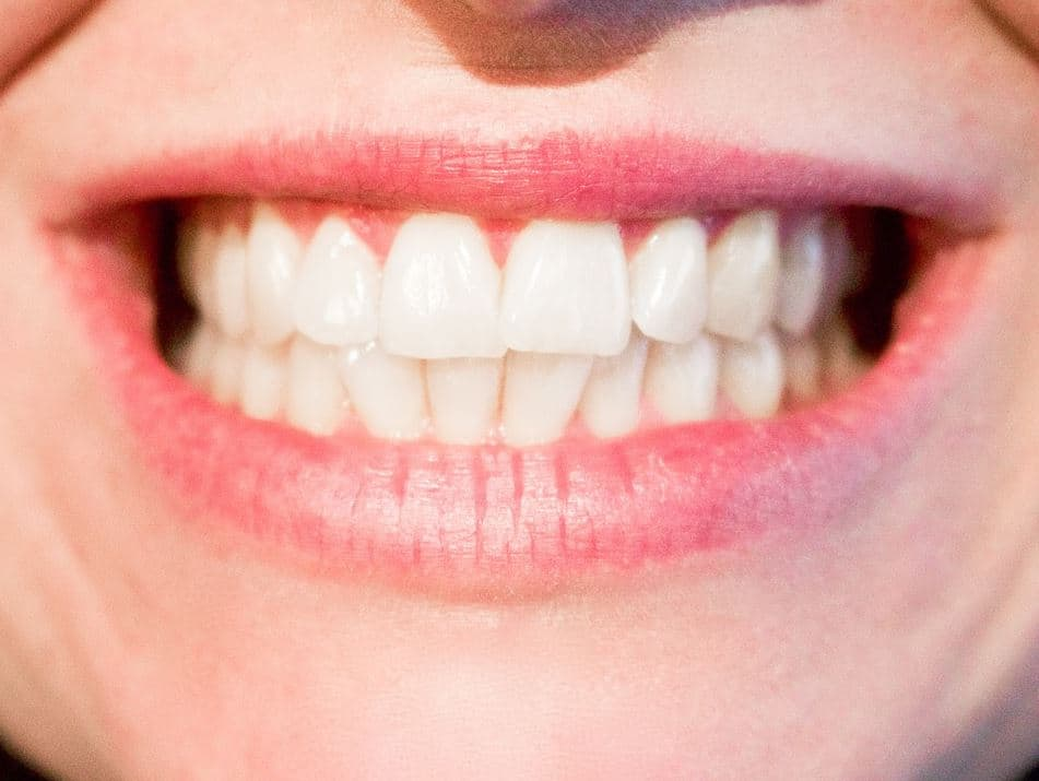 5-Myths-and-Facts-Concerning-Cavities 5 Myths and Facts Concerning Cavities