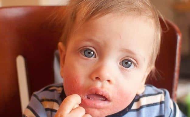 Childhood Allergies What to Do After Your Kids Have Had an Allergic Reaction