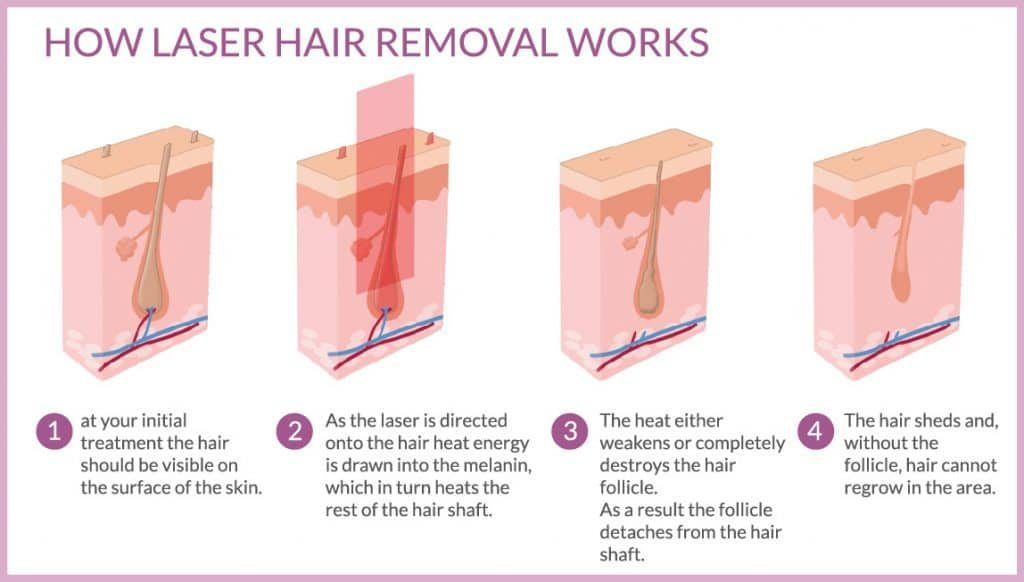 Laser Hair Removal In Mumbai How It S Cost Best In Health Care