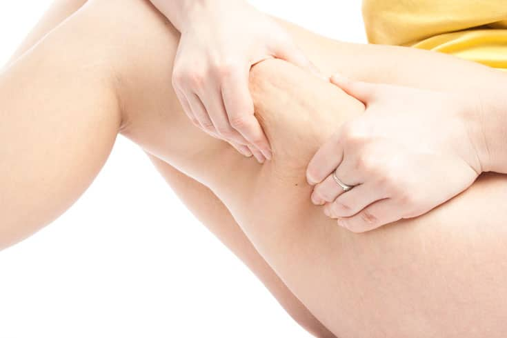 Is There A Permanent Solution To Cellulite?